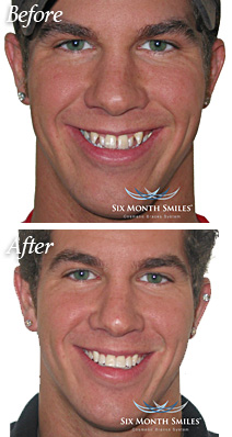 North Tonawanda Dentist Patient Before and After Six Month Smiles Treatment