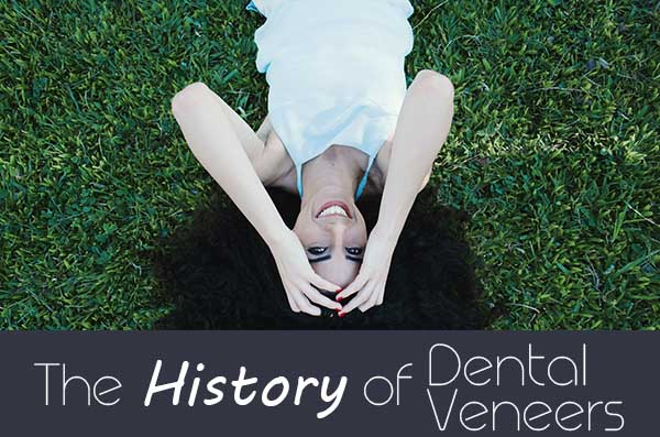 history-dental-veneers